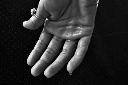 How to Stop Sweaty Hands: 8 Steps to Take